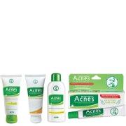 Acnes Pimple Treatment Kit, 1 Box Anti Acne